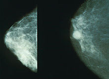 220px-Mammo breast cancer